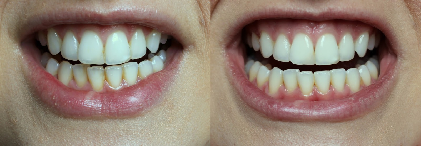 Pola Teeth Whitening before and after