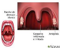 Asuhan kepeawatan faringitis