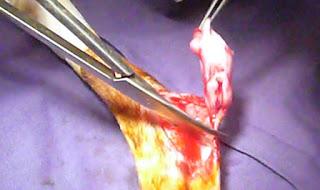 tumor brnigno