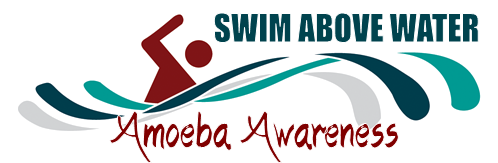 Swim Above Water~ Amoeba Awareness