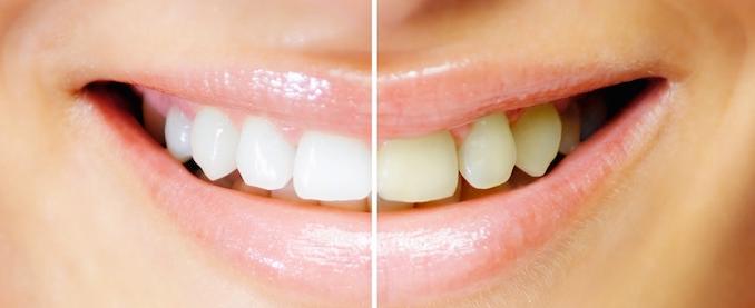 Videos E Tutoriais Aprenda A Clarear Dentes Usando O Photoscape