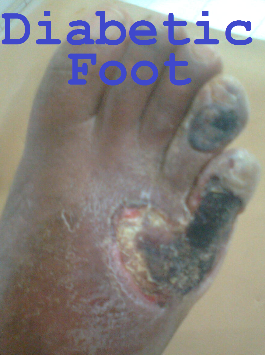 Diabetic Foot Pic 2