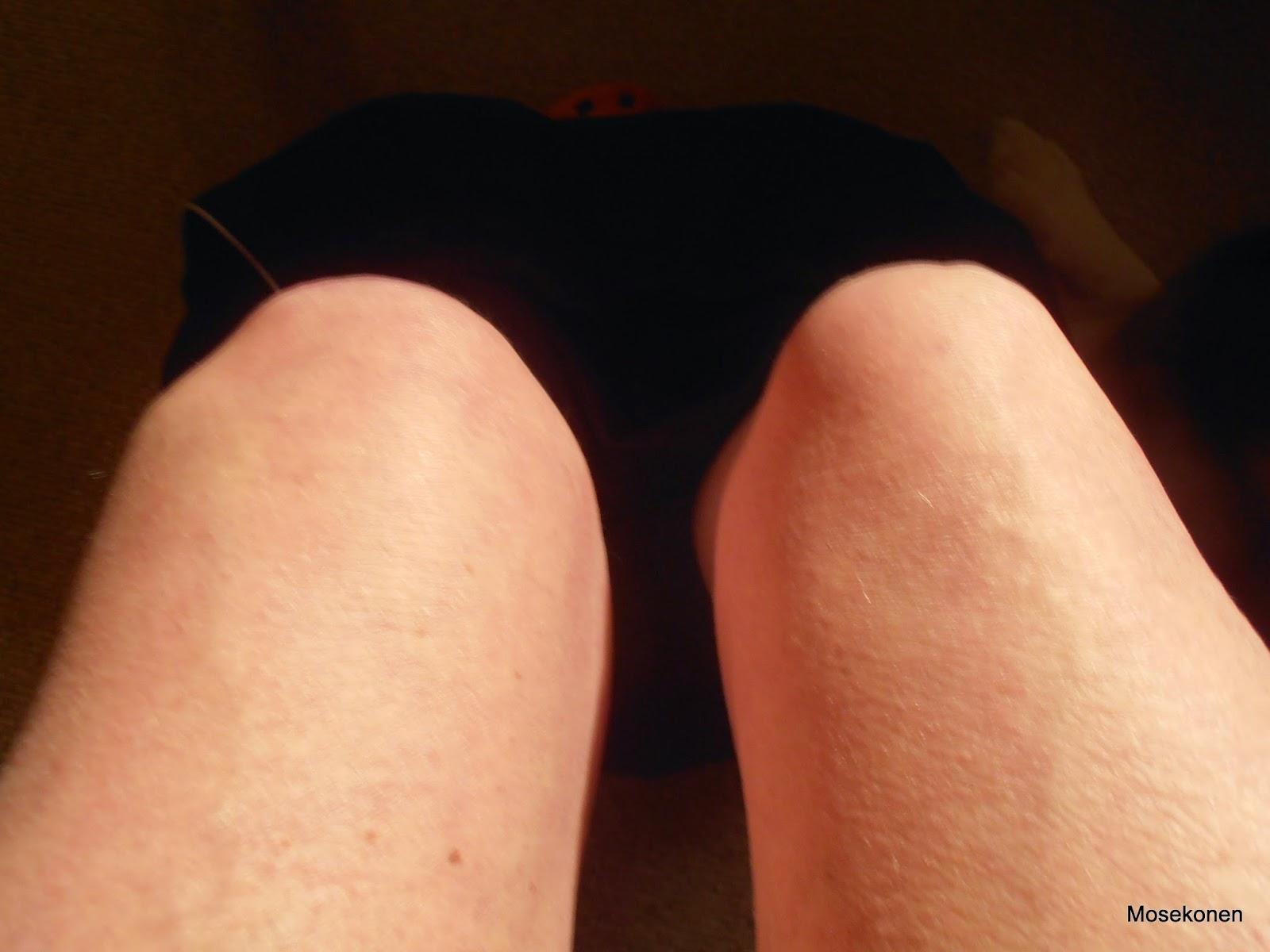 dårligt knæ