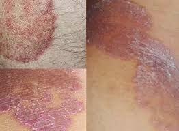 cara mengobati kadas pada kulit