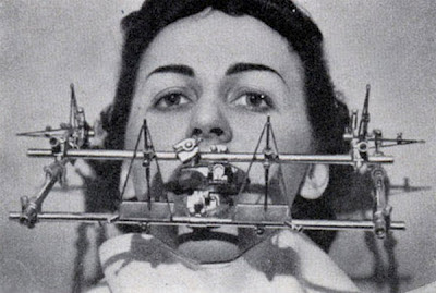 Ferramentas antigas de Dentista