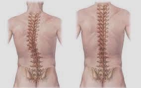 penyakit skoliosis