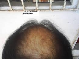 Que significa soñar con caída del cabello