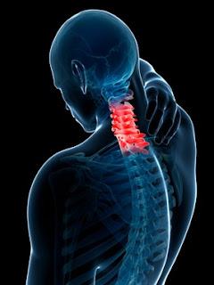 """Penyebab Sakit Leher """"Salah Bantal"""""""