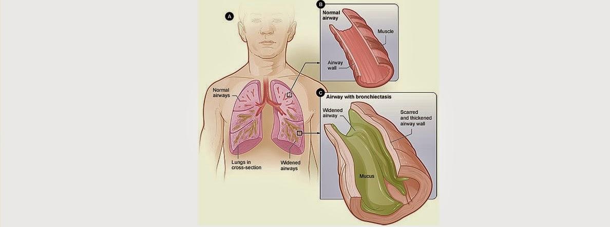 Penyebab, Gejala Dan Cara Mengatasi Penyakit Bronkiektasis