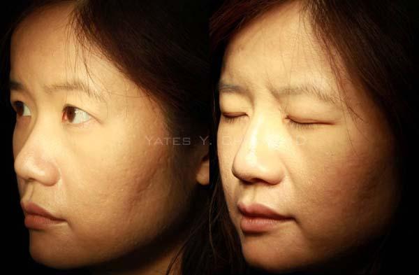 玻尿酸 隆鼻 水微晶 hydermis