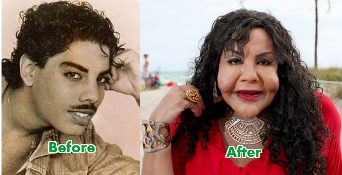 Rajee Narinesingh before and after photos
