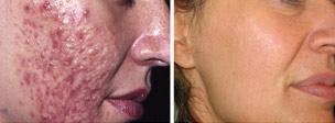 Curare l'acne, trattamento