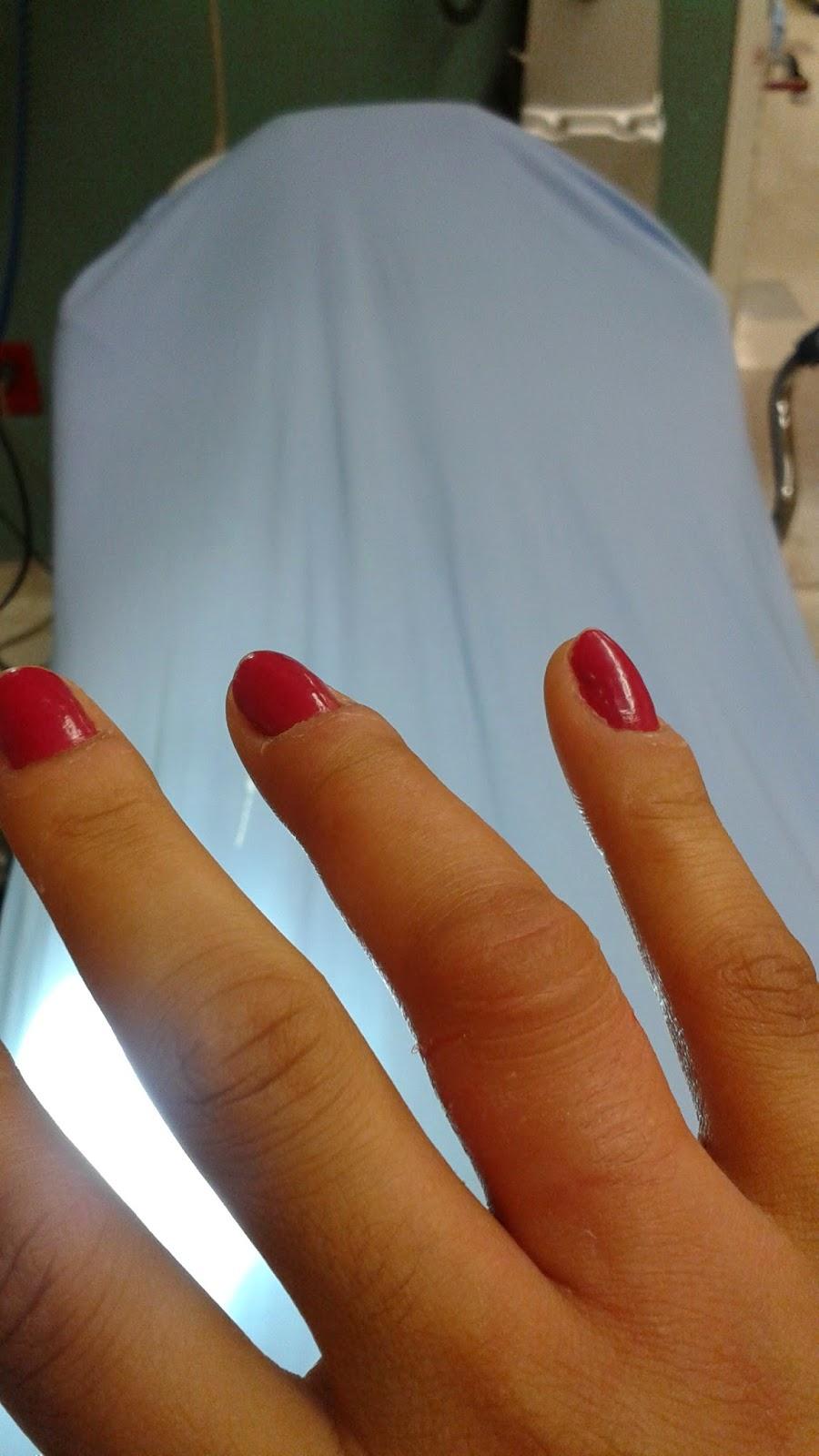 dedo inflamado