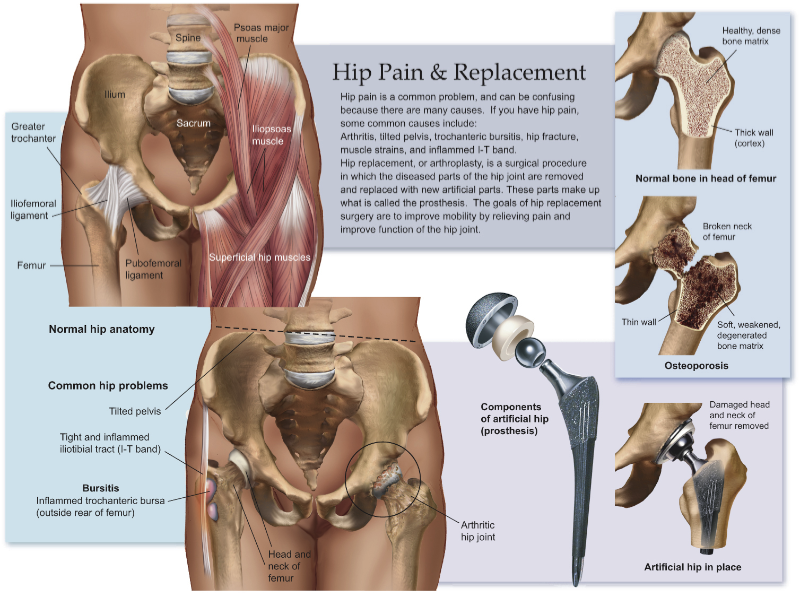 Hip Arthroscopy Surgery In Provo, Utah: Hip Pain And Replacement