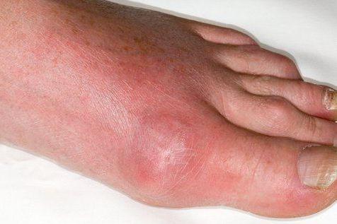 Penyakit sendi gouty arthritis pada jari kaki
