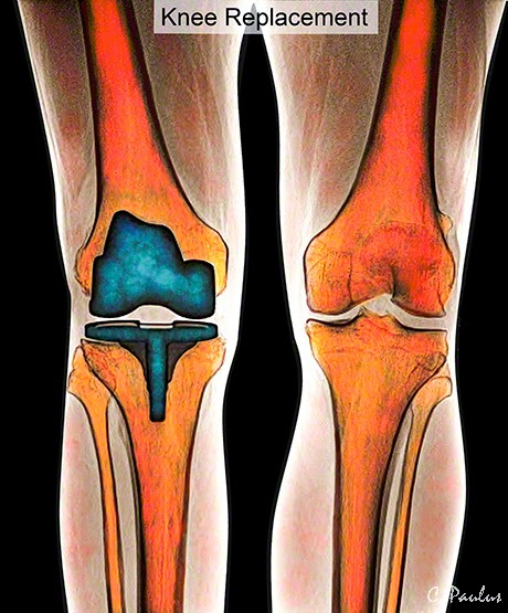Color AP Knee X-Ray showing a unilateral Knee Replacement