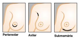 Nata de fonte de água mineral de aumento em um peito