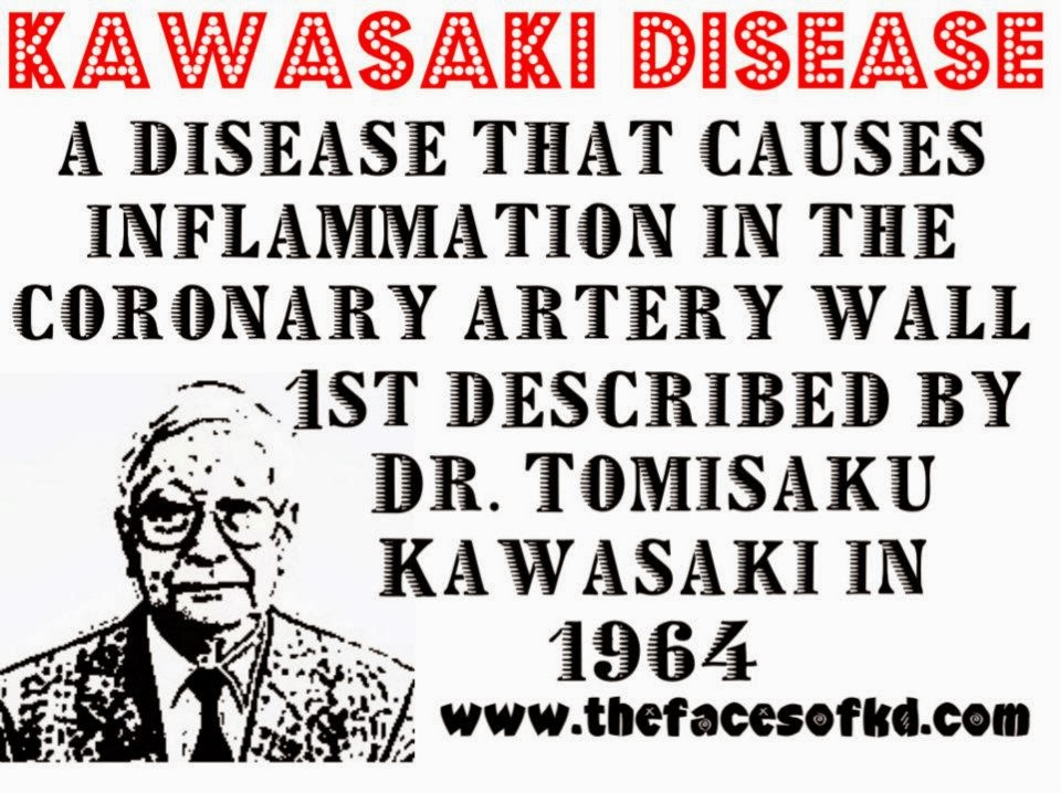 essays on kawasaki syndrome Rheumatic fever (rf) is an inflammatory disease that can involve the heart, joints, skin, and brain the disease typically develops two to four weeks after a.