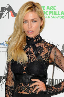 Abbey Clancy Lacy Dress