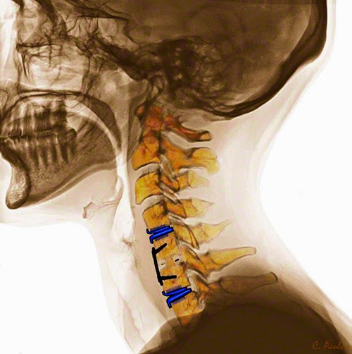 Lateral Cervical Spine Color X-Ray showing Artificial Disc Replacements