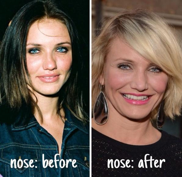 Cameron Diaz Plastic Surgery Before and After | Kim ...
