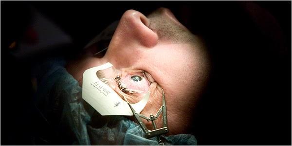 Lasik Mata | Operasi Lasik