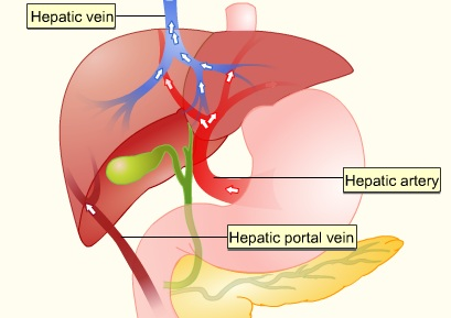 alcoholic liver disease violent vomiting