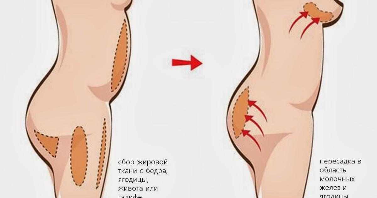 увеличить грудь клиника