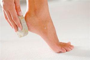 Проблемы женских ног