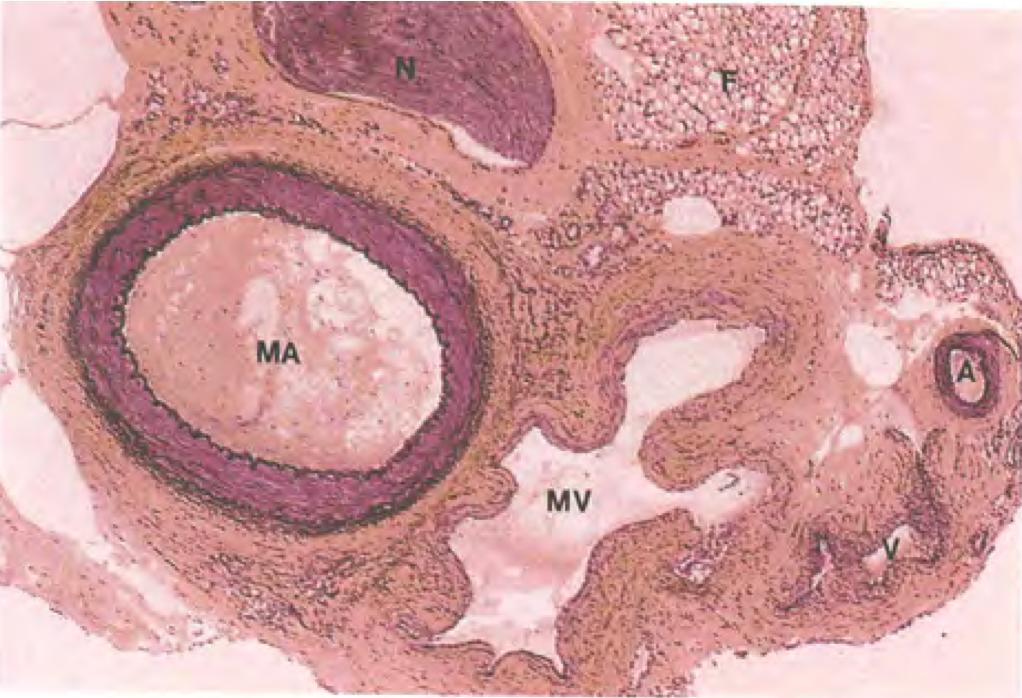 Muscular Vein Muscular Artery