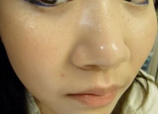 Tips Mengatasi Hidung Berminyak Secara Alami