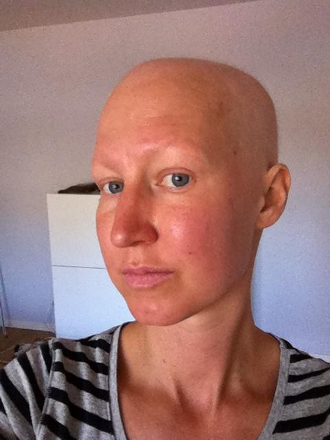 cancer i näsan