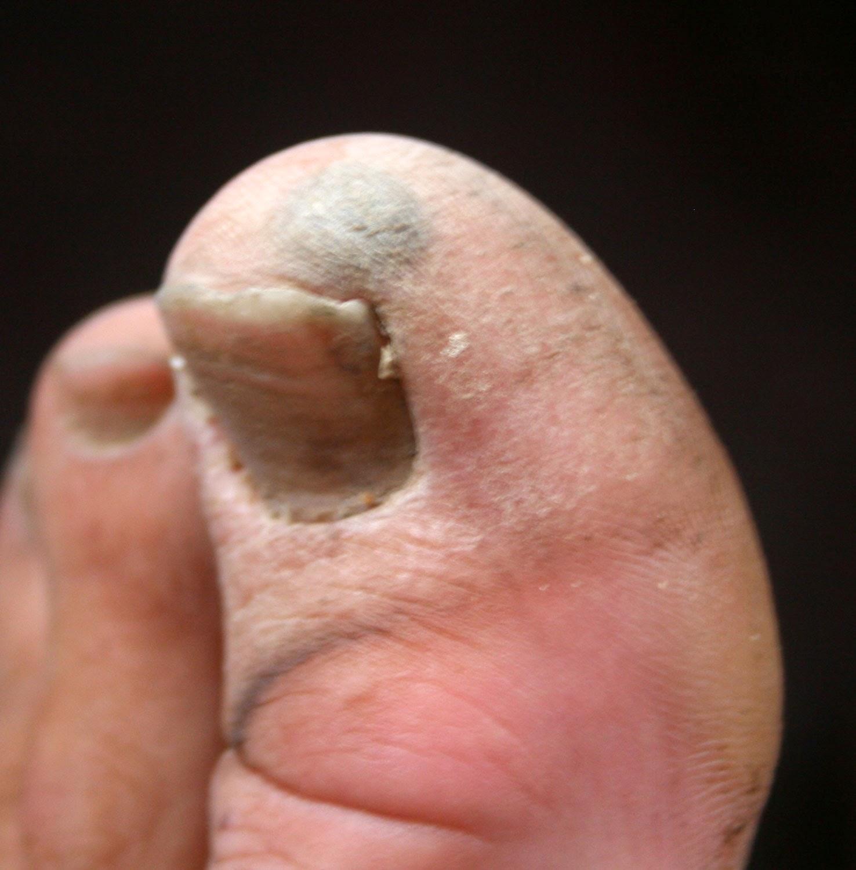Bashed toe