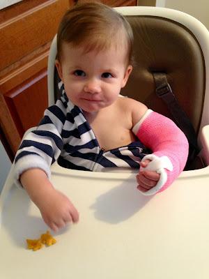 Baby's first broken arm