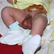 Cara Mengobati Hidrokel pada Anak dan Bayi secara Tradisional Alami Tanpa Operasi