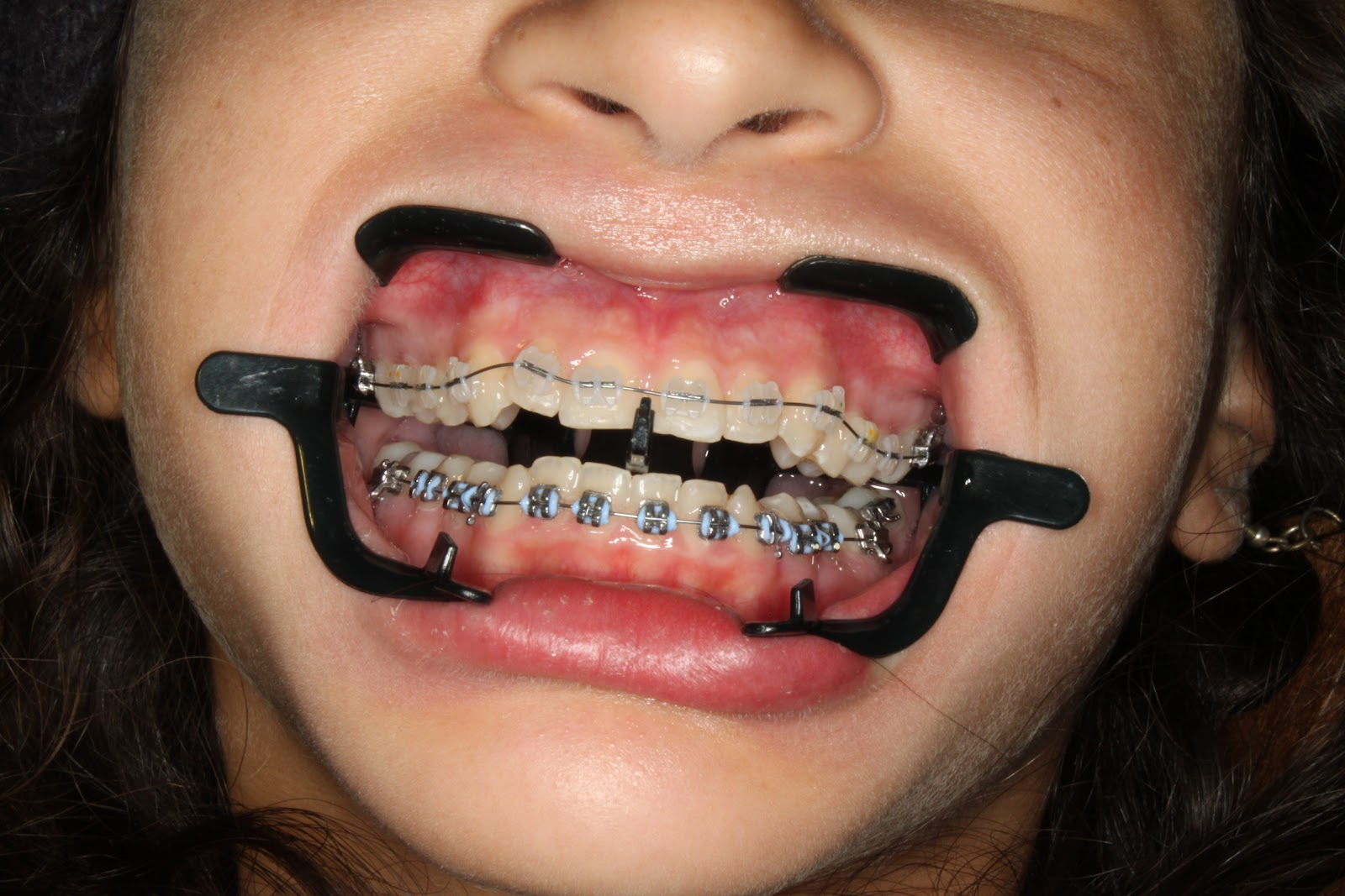 Dumb Question Do They Knock You Out When They Put Braces
