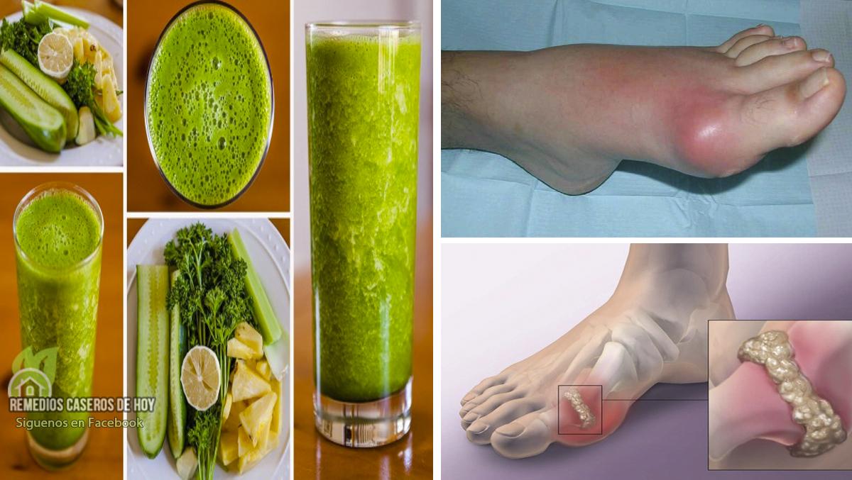 molestias del acido urico jugos para bajar el acido urico y colesterol el tomate de guiso es malo para el acido urico