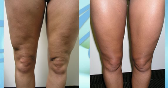 What Is Cellulite: Cellulite Reduction Before and After