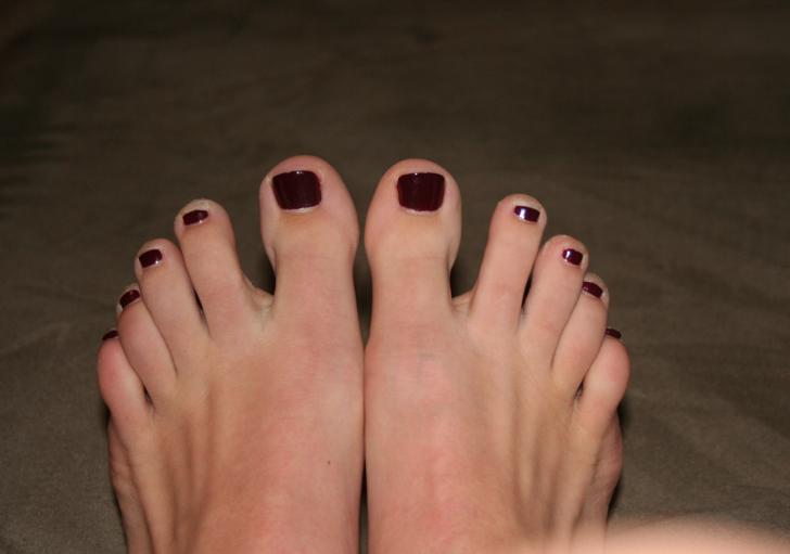 Gross Toe Nails See blackened toe nails.