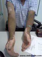 Vitiligo em mãos e braços