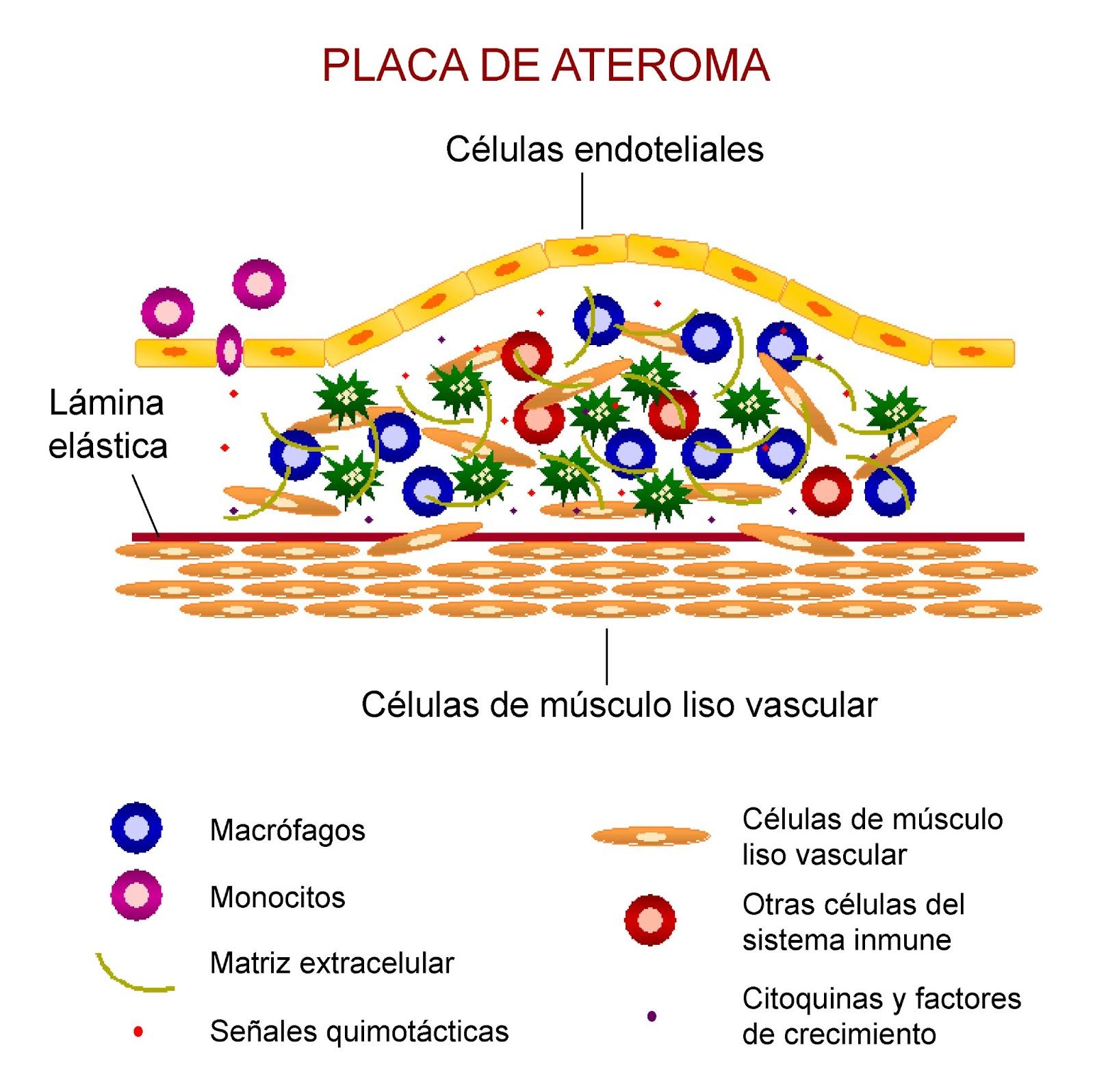 Composición de una placa de ateroma con diferentes tipos celulares y moléculas