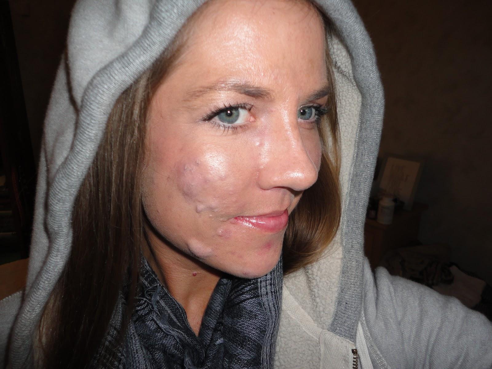 atralin acne | Skin | tomuch.us