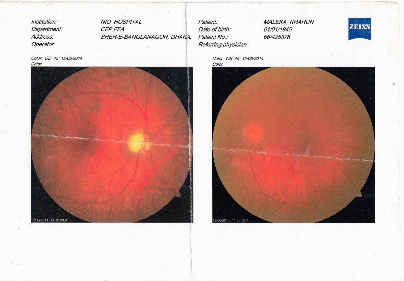 Wrong eye surgery