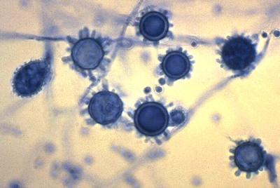 MICROBIAL CLASSIFICATI...