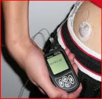 Everyday life using an insulin pump