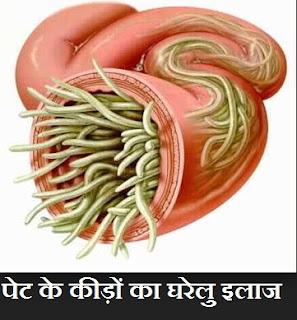 पेट के कीड़े का इलाज , Pet Ke Keede Ka Ilaj in Hindi , पेट के कीड़े का उपचार