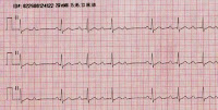 EKG of the Day (11/12)