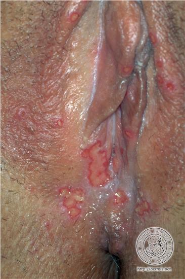 Using vibrator herpes