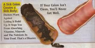 usus kotor, detox, detox usus, detoks, detoks usus, sistem pencernaan, sembelit, toksin, racun,