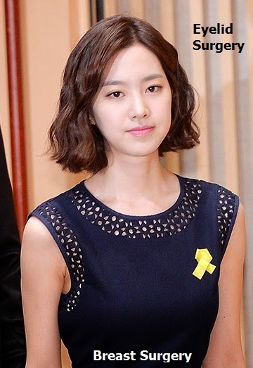 jin se yeon before and after plastic surgery